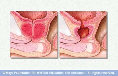 Transurethral Resection of the Prostate (T.U.R.P.)